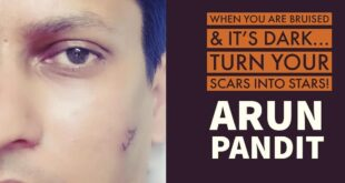 Quote on Scars and Stars by Arun Pandit Quote on Scars Stars by Arun Pandit